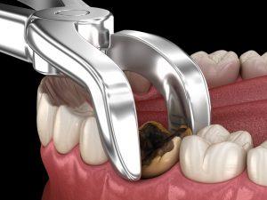 emergency-dental-canberra