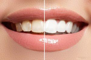 teeth-whitening-canberra